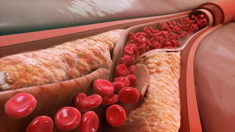 Cholesteron