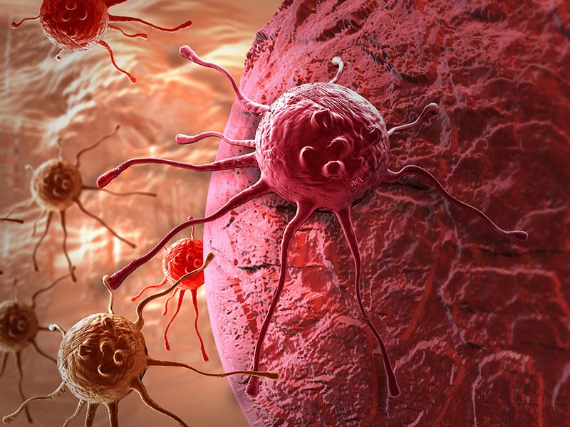Quá trình di căn của ung thư buồng trứng