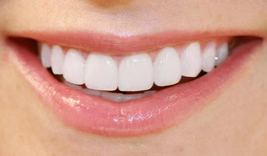 Cách xử lý khi bị ê buốt chân răng
