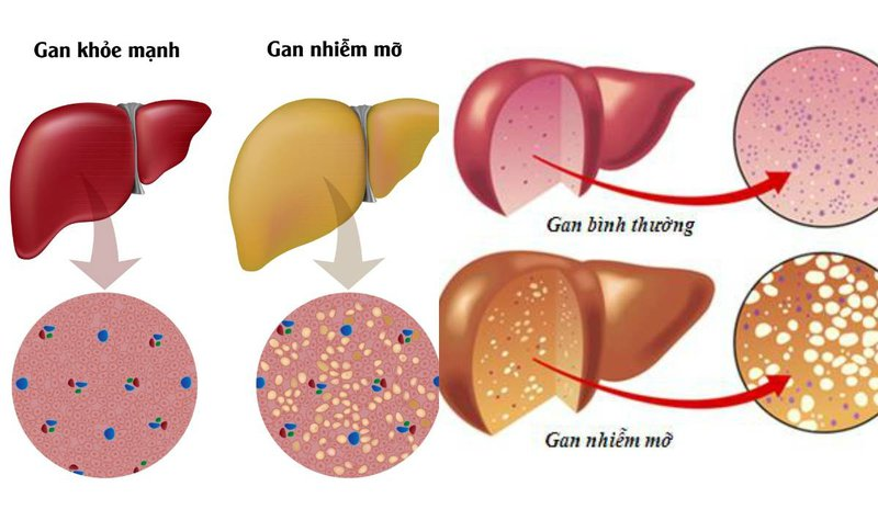 Chẩn đoán tình trạng xơ hóa gan ở bệnh nhân gan nhiễm mỡ không do rượu