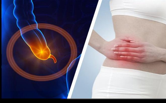 Viêm ruột thừa diễn biến thế nào và kéo dài bao lâu?