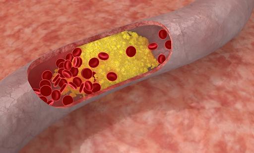 Điều trị mỡ máu cao: Những điều cần biết