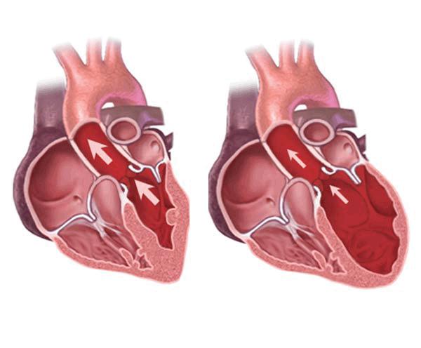 Dấu hiệu và tiêu chuẩn chẩn đoán thấp tim