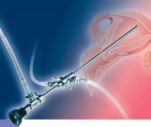 Kỹ thuật nội soi buồng tử cung