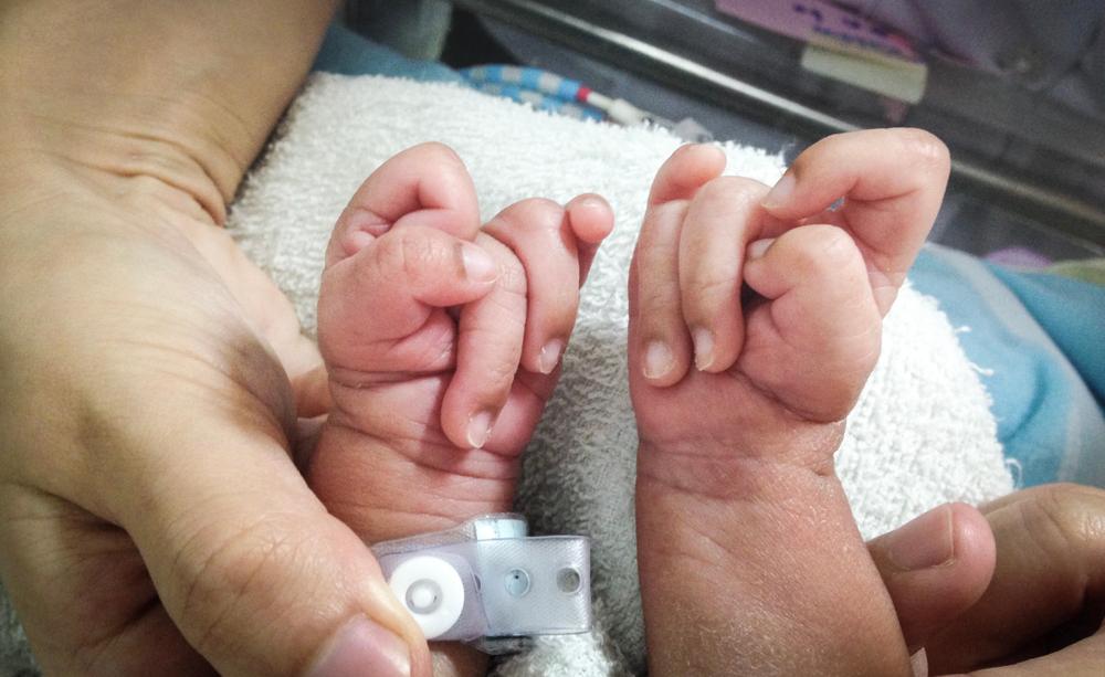 Ảnh hưởng của hội chứng Edward lên thai nhi