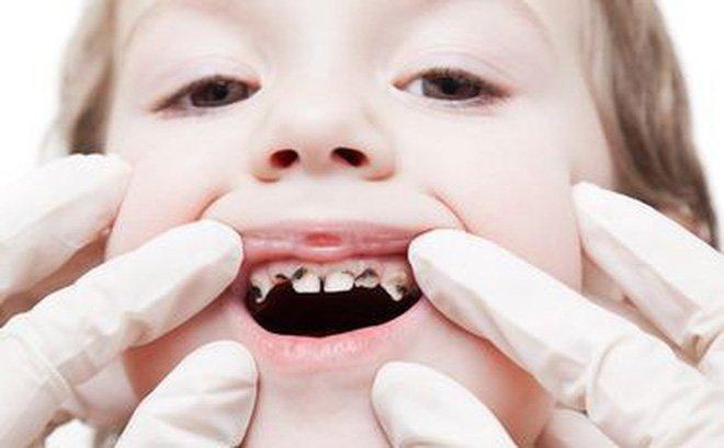 Kết quả hình ảnh cho sâu răng