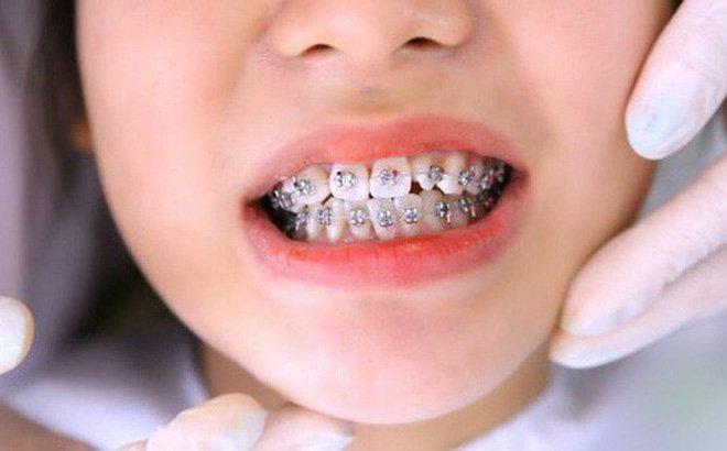 Niềng răng bằng mắc cài cố định áp dụng từ 1 - 2 năm