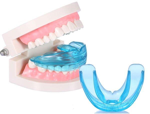 Trainer chỉnh răng