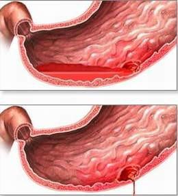 Chẩn đoán và điều trị xuất huyết tiêu hóa