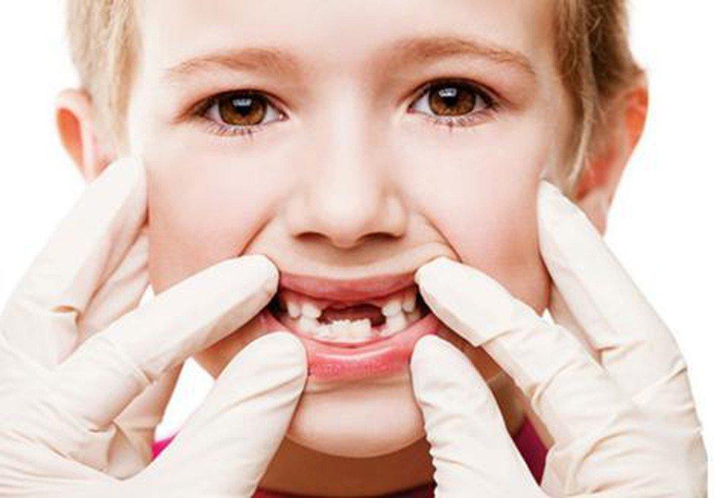 Sâu răng ở trẻ em: Nguyên nhân, dấu hiệu nhận biết lúc mới chớm
