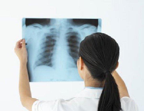 Chụp X quang