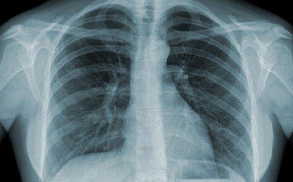 Lưu ý khi chụp CT phổi