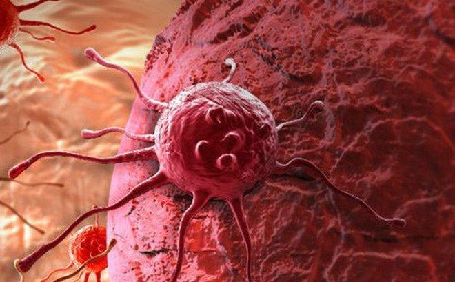 Cách xác định các giai đoạn của ung thư