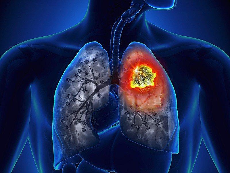 5 dấu hiệu sớm của ung thư phổi bạn cần biết | Vinmec