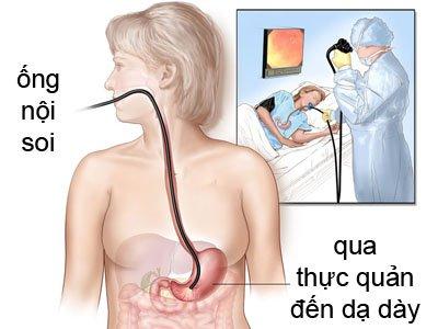 Nội soi can thiệp ống tiêu hóa