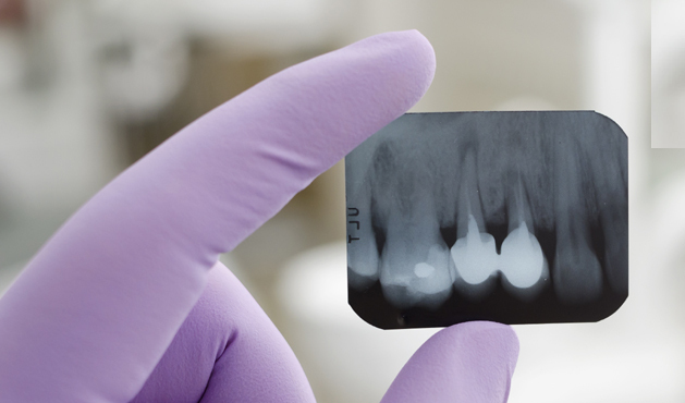 X-quang răng