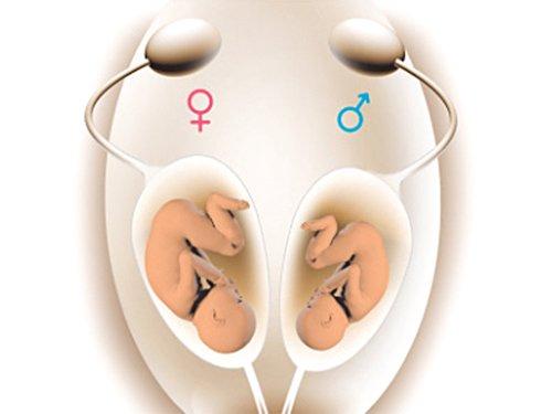 Giới tính thai nhi hình thành lúc nào?