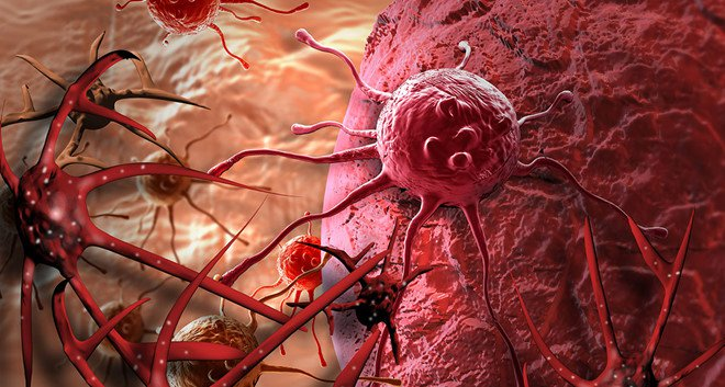 Tế bào ung thư chết ở nhiệt độ bao nhiêu?