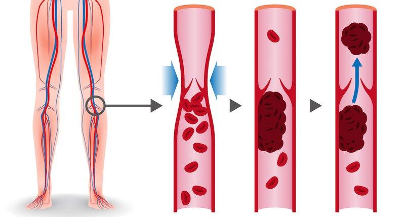 Bệnh huyết khối tĩnh mạch sâu