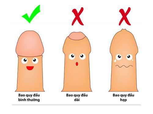 4 phương pháp xử trí hẹp bao quy đầu ở trẻ
