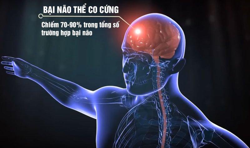 bai-nao-co-chua-duoc-khong