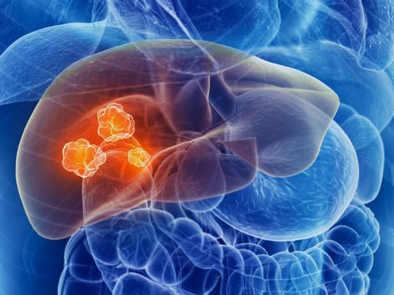 Ung thư gan có thể phòng ngừa nếu biết những điều này