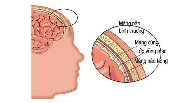 Cấu tạo của màng não