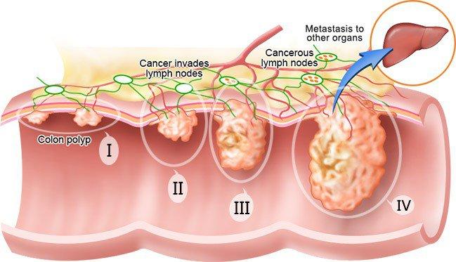 Các giai đoạn ung thư: 5 lý do quan trọng bạn cần biết