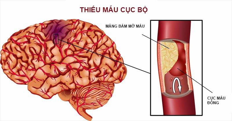 Sự hình thành cục máu đông trong não: Nguyên nhân hàng đầu gây đột quỵ
