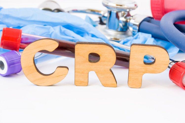 Các chỉ số trong kết quả xét nghiệm CRP nói lên điều gì?