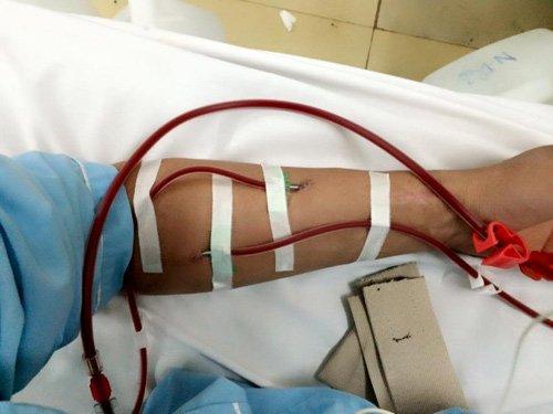Lọc máu