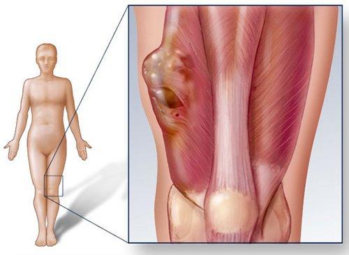Chẩn đoán ung thư xương