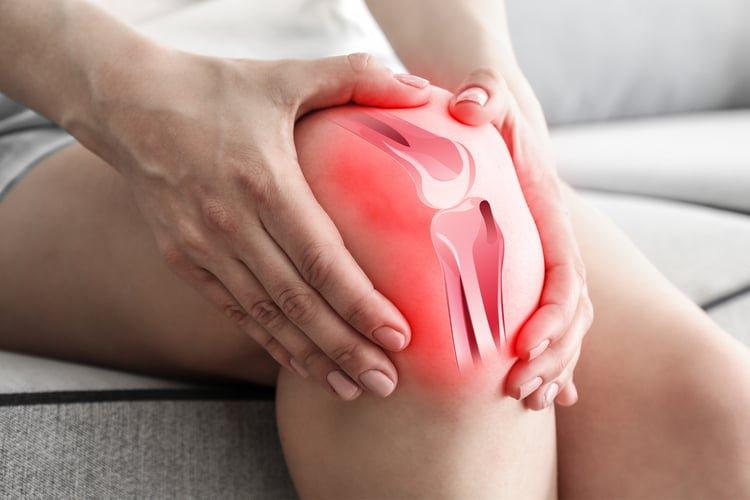 Gân chân ngỗng là gì?