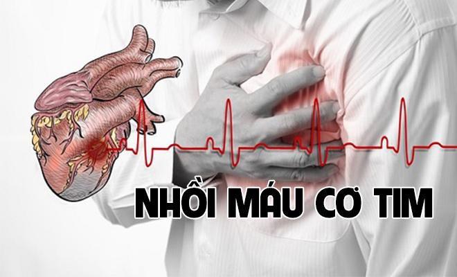 Hướng dẫn xử trí, sơ cứu cho người bị nhồi máu cơ tim