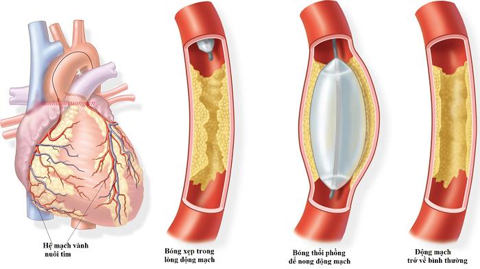 Nhồi máu cơ tim: Khi nào dùng thuốc tiêu sợi huyết, khi nào cần can thiệp?