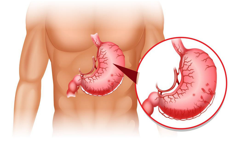 Sa dạ dày là bệnh gì?