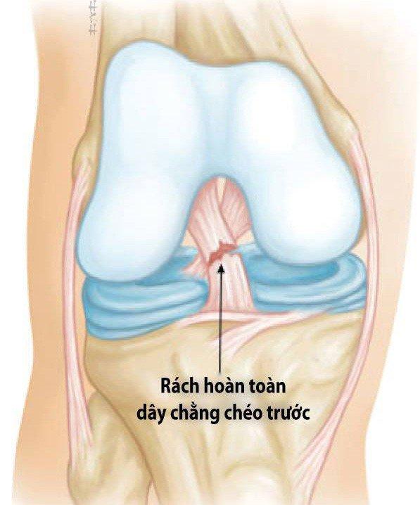 Phẫu thuật nội soi ít xâm lấn, tái tạo hiệu quả dây chằng chéo trước