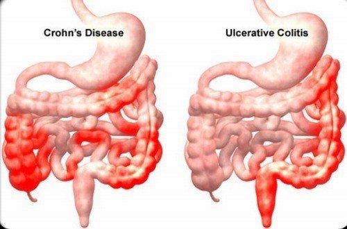 Chế độ ăn uống cho người bị viêm đường ruột