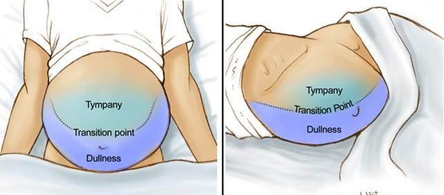Nguyên nhân, triệu chứng tràn dịch màng bụng