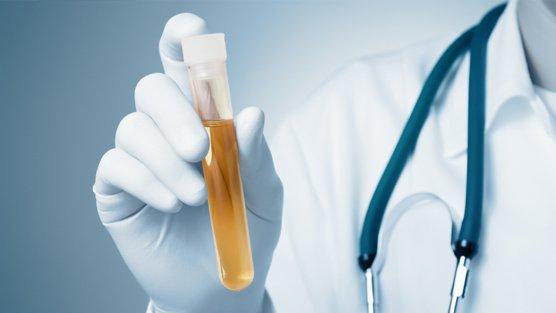 Ý nghĩa chỉ số SG trong xét nghiệm nước tiểu