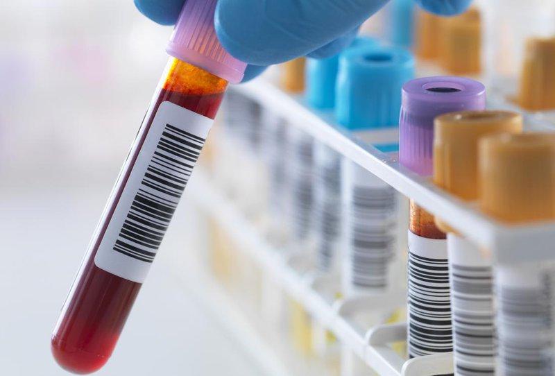Một vài chỉ số xét nghiệm quan trọng trong chẩn đoán viêm tụy cấp