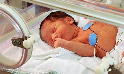 Bơm surfactant điều trị suy hô hấp sơ sinh: Những điều cần lưu ý