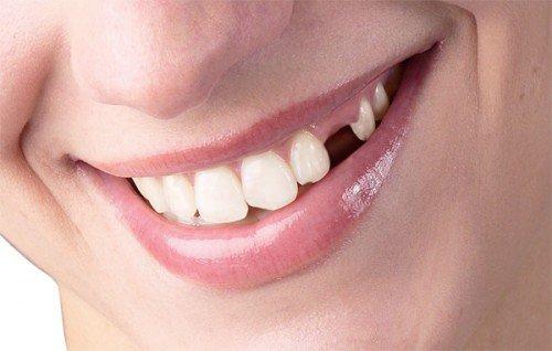 Tiêu xương răng: Những điều cần biết