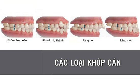 nieng-rang-lech-khop-can-1