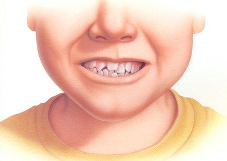 Nguyên nhân và ảnh hưởng của răng mọc chen chúc