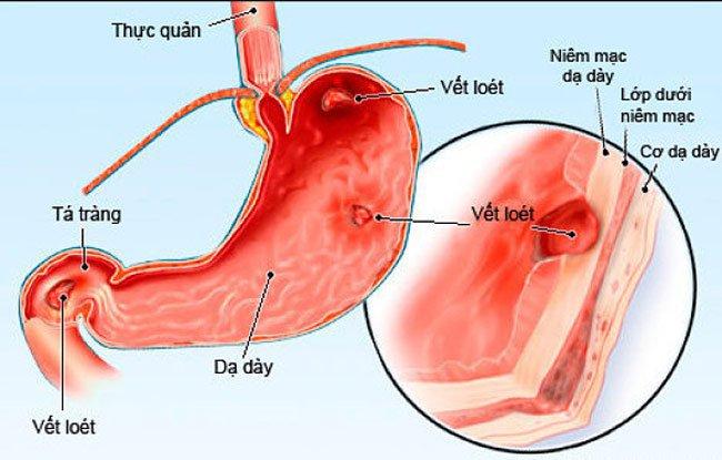 Điều trị loét dạ dày tá tràng