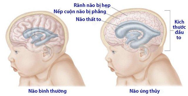 thai bị não úng thủy