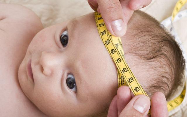 Giãn não thất nhẹ ở trẻ sơ sinh