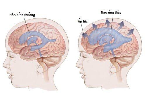 Giãn não thất có nguy hiểm không?