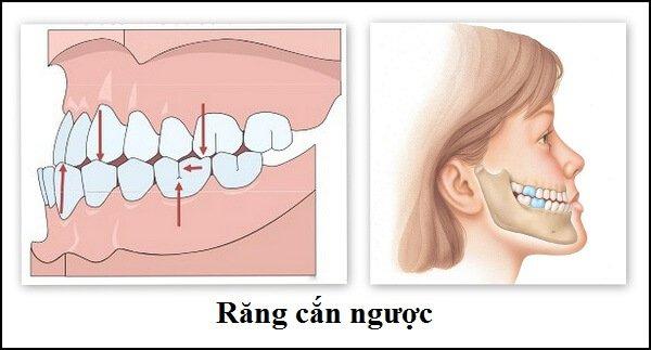 Răng thế nào bị coi là khớp cắn ngược?